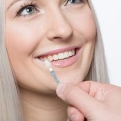 Understanding How Long Do Veneers Last
