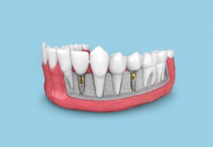 braces with dental implants